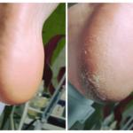 Opracowanie suchej skóry i pękających pięt